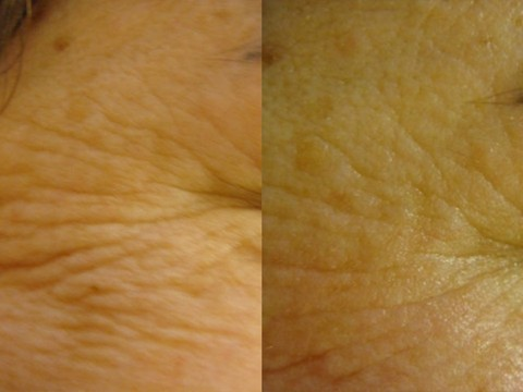 skincoach-before-after-011