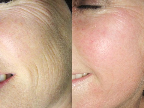 skincoach-before-after-021