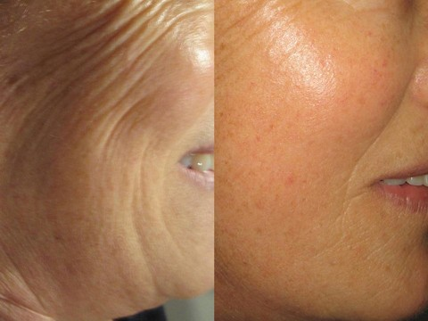 skincoach-before-after-041